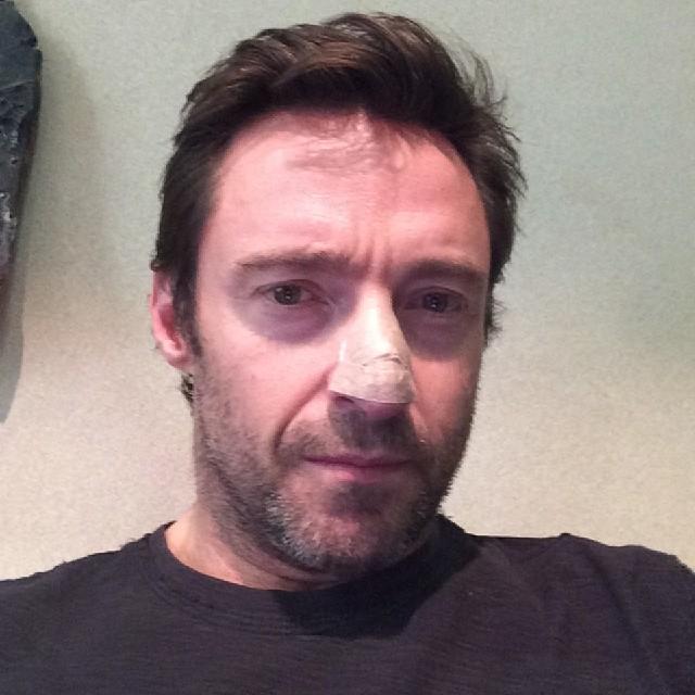 """""""金刚狼""""休·杰克曼(Hugh Jackman)Twitter 公布他罹患皮肤癌"""