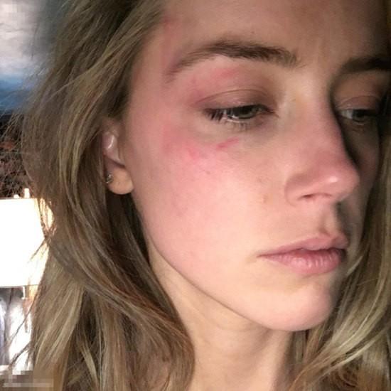 希尔德早前曝光的因家暴的受伤照片