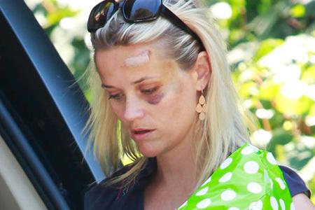 瑞茜·威瑟斯彭车祸后出院 眼睛乌青精神不错