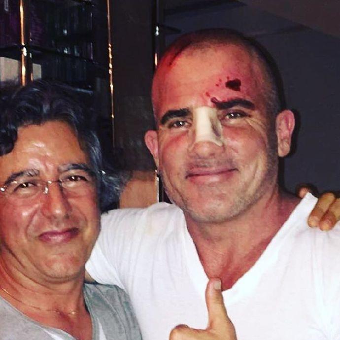 多米尼克《越狱》片场意外受伤 被铁棒砸中头部 伤势不重不会影响拍摄进度